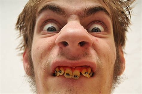Ugly Man Pictures, Images And Stock Photos