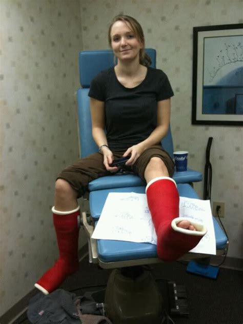 Eco Cast The Attraction To Orthopedic Casts