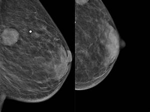 Left Mammogram  Mlo And Cc  Views  Soft Tissue Mass In