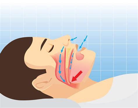 tratamientos caseros  la apnea del sueno