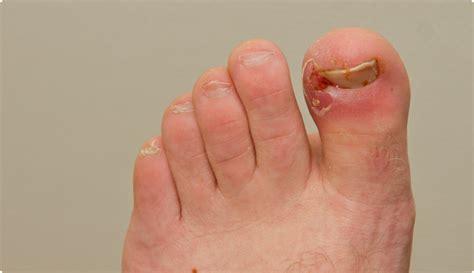 ongle incarne traitement maison comment arr 234 ter ingrown toenails