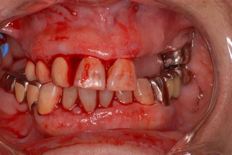 歯茎 血 が 出る