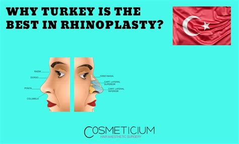turkey rhinoplasty why surgery