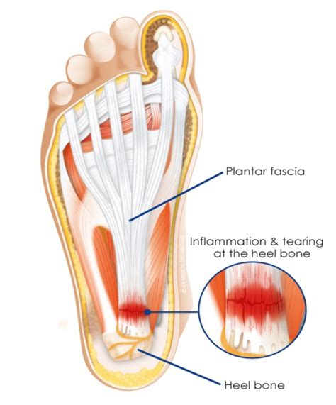 planters fasciitis treatment optimum a guide to plantar fasciitis optimum health