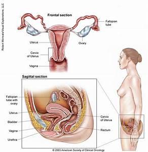 Cervical Cancer  Medical Illustrations
