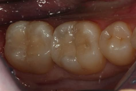 tooth coloured  cosmetic fillings cosmetic dentists