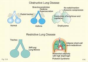 Respiratory  Ipf And Pneumoconioses At University Of Rochester School Of Medicine And Dentistry
