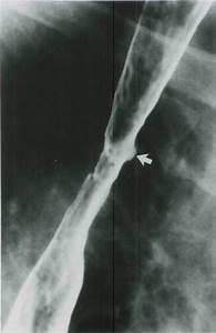 Is The Radiologic Appearance Of Barrett U0026 39 S Esophagus