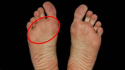 Ball Feet Pain Forefoot Aka