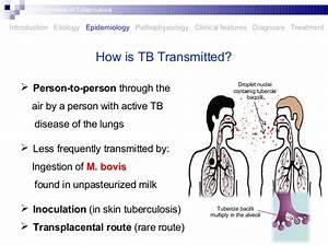 Pathogenesis of tuberculosis
