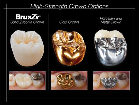 zirconia solid dental crowns metal implant custom instead crown ramsey amin dds abutments porcelain milled benefits resistant