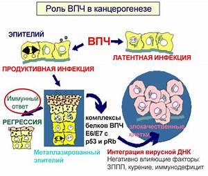 Вирус папилломы у женщин при беременности лечение