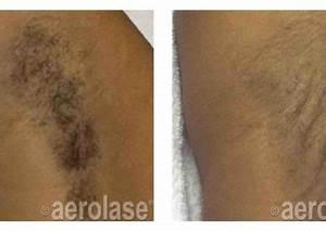 Small Area Laser Hair Removal Portland OR RediMedi