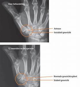Gebroken pols: symptomen, behandeling, herstel en operatie