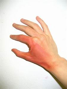 Health Tips: Types, Symptoms & First Aid for Burns – An ...