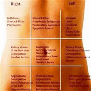 1000+ ideas about Stomach Pain Chart on Pinterest ...