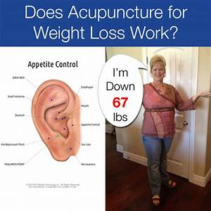 Does Acupuncture For Weight Loss Work Acupuncture