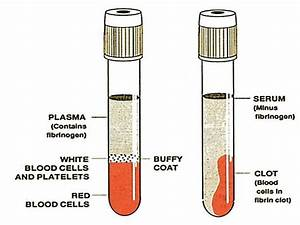 difference between Plasma and Serum | Medical Laboratories