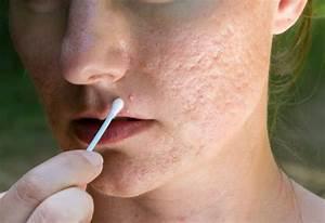 best acid peel for acne scars