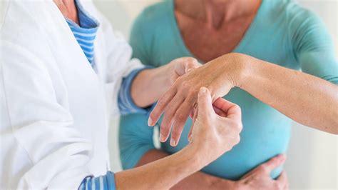 Rheumatoid Arthritis : Practice Essentials, background
