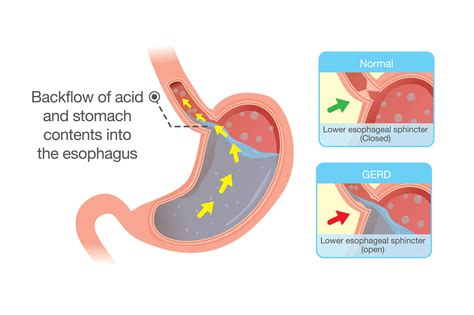 Ecan Petitions Fda For Esophageal Cancer Warning On Heart