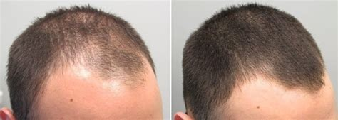 Does propecia grow back hair or just prevent current hair
