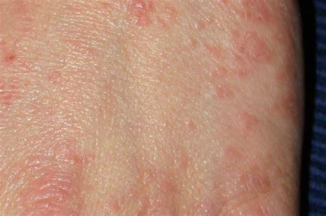 Scabbia, cos'è la malattia che provoca prurito intenso e ...