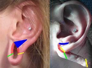Large Gauge Earring Repair Correction