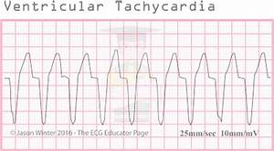 ECG Educator Blog : Ventricular Rhythms