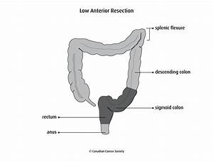 Abdominoperineal Resection Diagram