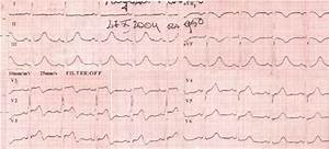 Ecg In Acute Co Poisoning  24 Hours After Exposure