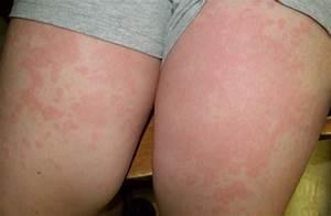 dravet syndrome symptoms