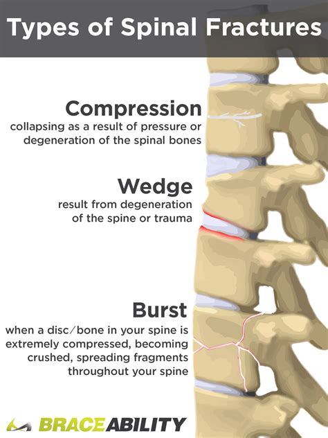 How Can I Treat A T12 Or L1 Thoracic Spinal Burst Fracture?. Feel Signs Of Stroke. Resource Signs. Music Notes Signs. Health Signs. Mayor Campaign Signs Of Stroke. 13 June Signs. Kiss Signs. Dedication Signs Of Stroke