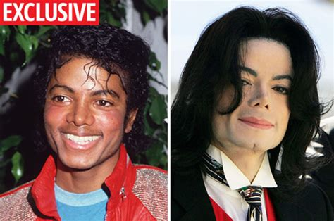 King Of Pop's White Skin Cause Exposed