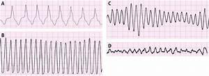 *Cardiac Arrest - *Cardiovascular Diseases - Diseases ...