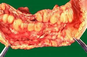 Crohn U2019s Disease  Causes  Symptoms  Treatment