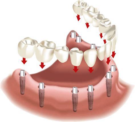 feste zaehne bei zahnlosigkeit implantatecom