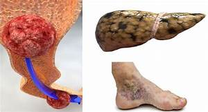 If You Experience Any Of These 9 Liver Damage Warning