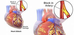 Heart Attack Risk Soars After Joint Replacements