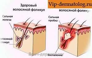 Псориаз лечение лекарствами инъекции
