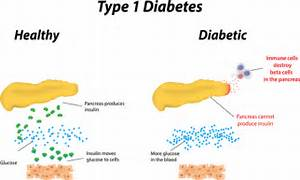 What You Should Know About Type 1 Diabetes - An Educational Blog for ... Juvenile Diabetes