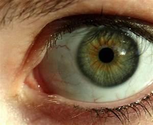 Yeux Verts Rares : la faiblesse des yeux clairs les pauvres sur le forum ~ Nature-et-papiers.com Idées de Décoration