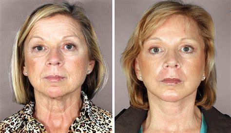 cosmetic surgery three three stories sacramento