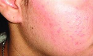 Grade I  Mild  Acne Showing Comedones With Few Inflammatory Papules And