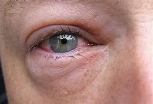 Увлажняющие капли от морщин под глаза
