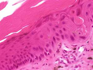 Large-cell Acanthoma