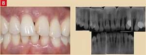 Controle Technique Bretteville Sur Odon : classification des maladies parodontales ~ Medecine-chirurgie-esthetiques.com Avis de Voitures