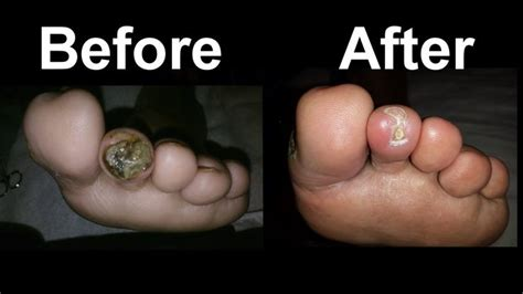 heal  diabetic foot sore fast  video