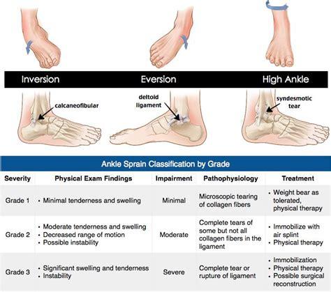 ankle sprain grades ideas  pinterest ankle