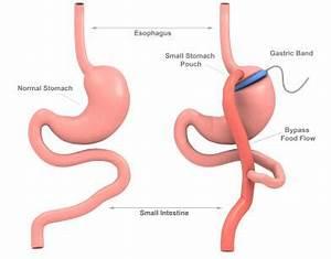 Bmi 35 gastric bypass